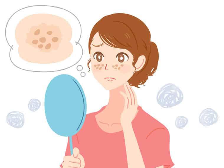 顔を洗いすぎると「ニキビ」ができる?という雑学