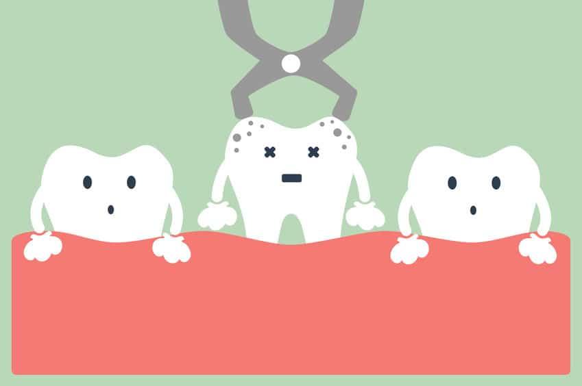 虫歯になりやすいお菓子の特徴についてのトリビア