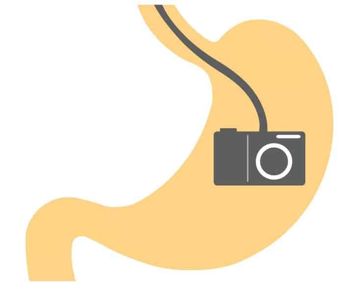 カプセル型の「胃カメラ」があるという雑学
