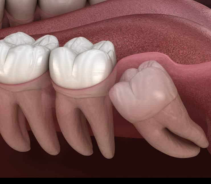 親に知られることもなく生える歯についてのトリビア