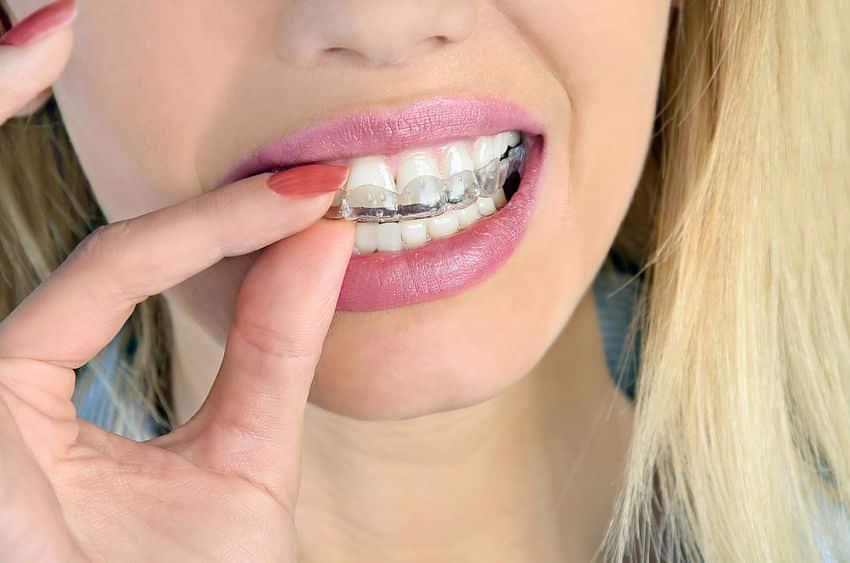 歯ぎしりの予防や対策というトリビア