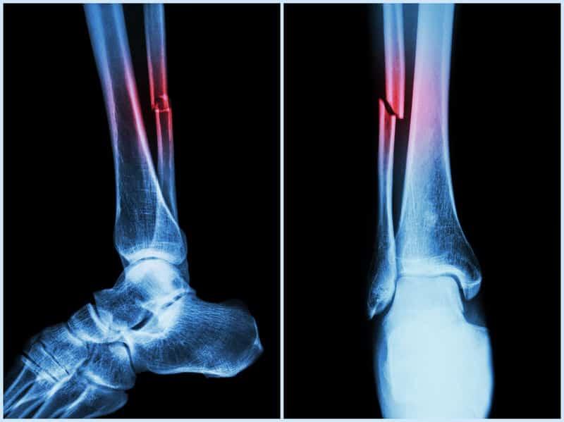 「単純骨折」と「複雑骨折」の違いは?に関する雑学