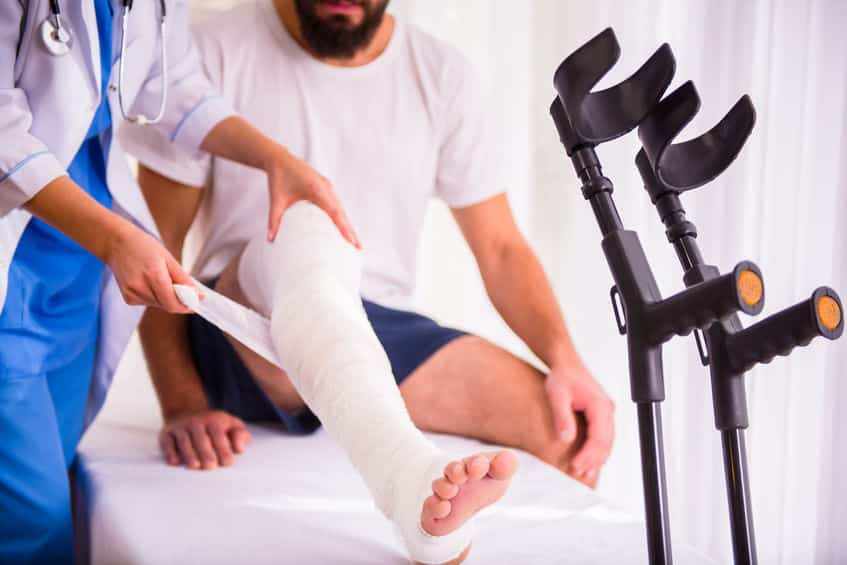 単純骨折と複雑骨折の違いは、骨が皮膚を破っているかどうかというトリビア