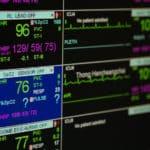 心電図の電極ってなぜ足にもつけるの?という雑学