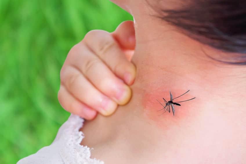 蚊に刺されてもかゆくならない方法に関する雑学