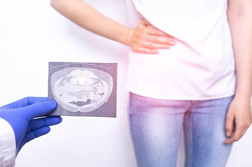 「盲腸」は虫垂(ちゅうすい)という別の臓器の病気というトリビア